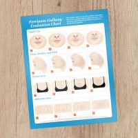 Hirsutism Chart  8.5x11 Consultation Card - Rated PG-13