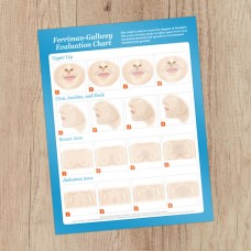 Hirsutism Chart  8.5x11 Consultation Card - Rated R